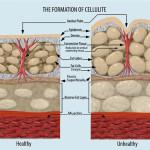 Ce este celulita?